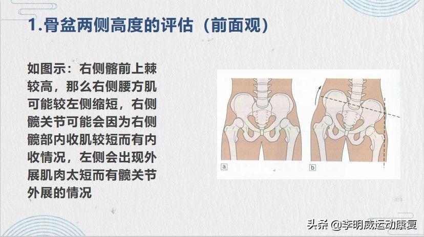 骨盆倾斜怎么矫正(骨盆侧倾自我评估及矫正方法)